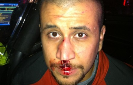 Zimmerman on the night of his altercation with Martin. Creative Commons License.